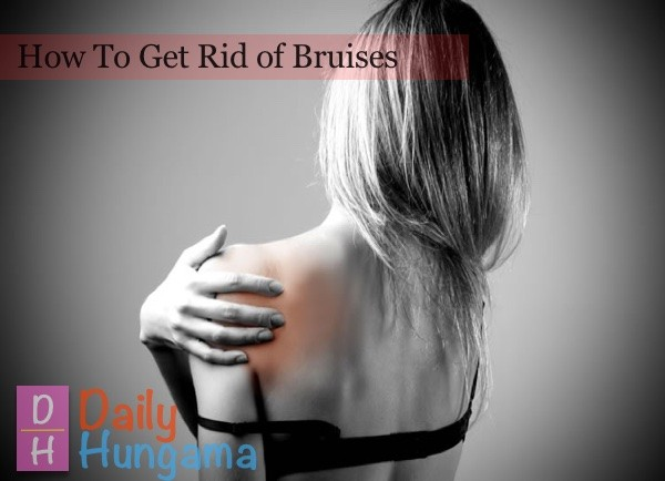 how-to-get-rid-of-bruises